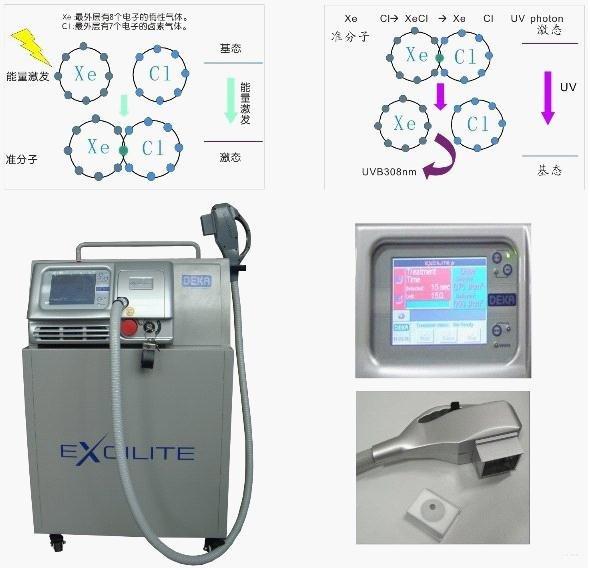 308激光技术——白癜风的治疗革命