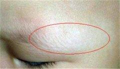 白癜风早期症状和图片