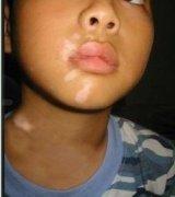 小孩脸上有白斑,早期白癜风能治愈吗?