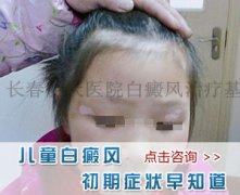 患者提问:到了夏天孩子脸上就会出现白斑怎么办?