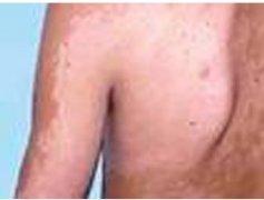 背部白癜风的发病原因是什么