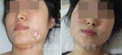 25岁赵小姐面部白癜风的门诊病例