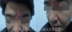 门诊案例:45岁男性面部白癜风10年