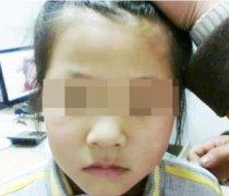 婴儿白癜风有何特殊症状