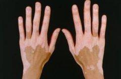 白癜风疾病诊断的依据有哪些