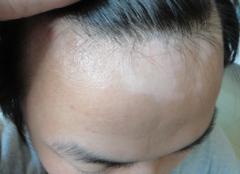怎样诊断白癜风的早期症状