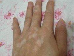 手臂白癜风的早期治疗