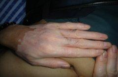 女性白癜风患者怀孕期间预防措施有哪些